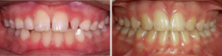 Impaction & Multiple Missing Teeth
