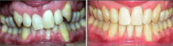 Severe Crowding, Recession, Canted Upper Teeth